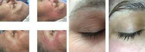 resultados radiofrecuencia facial