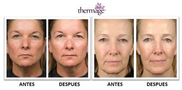 antes y despues del tratamiento thermage cpt