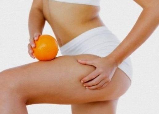 gracias a la radiofrecuencia corporal podemos deshacernos de la piel de naranja