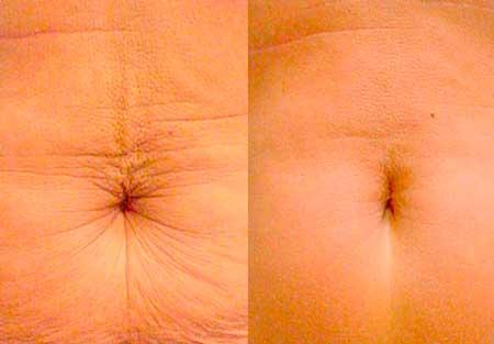 radiofrecuencia abdominal antes y despues