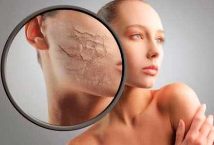 como hidratar la piel seca