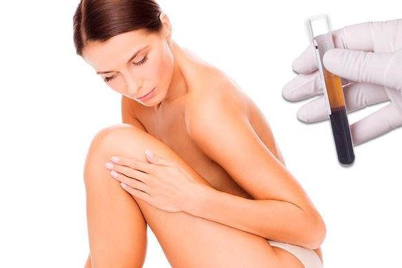tratamientos no invasivos con PRP