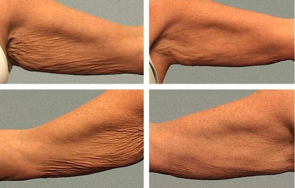 el tratamiento de radiofrecuencia thermage disminuye la flacidez en los brazos
