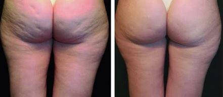 el antes y el despues de la radiofrecuencia corporal