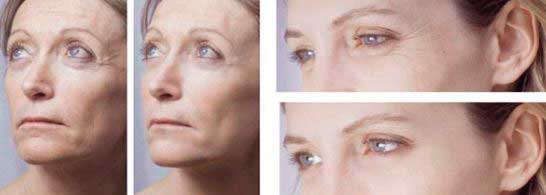 antes y despues de la mesoterapia facial