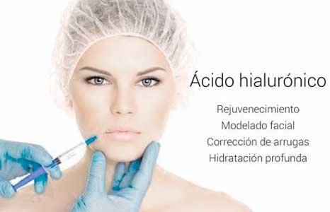 el acido hialuronico nos proporciona un monton de beneficios