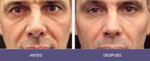 antes y despues de la radiofrecuencia en un hombre en fotos
