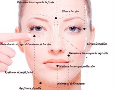 beneficios de los hilos tensores en la cara