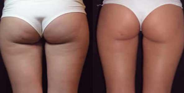 foto del antes y el despues de la radiofrecuencia corporal