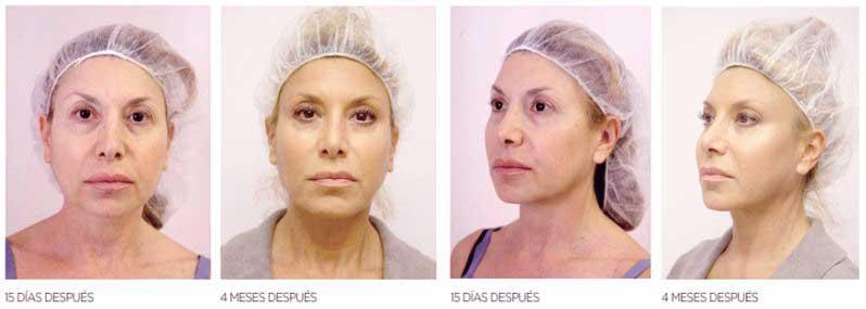 resultados de los hilos tensores con estas fotos de antes y despues