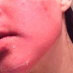 rojez o reacciones alergicas son algunos de los riesgos o efectos secundarios de un peeling quimico