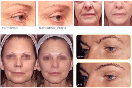 varias personas muestras los resultados de la radiofrecuencia facial antes y despues