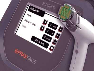 aparato fraxface para practicar la radiofrecuencia fraccionada