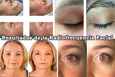 resultados que se obtienen con la radiofrecuencia facial