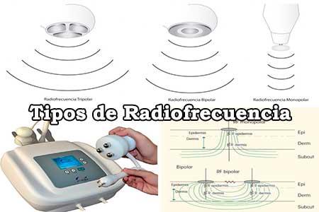 tipos de radiofrecuencia que hay